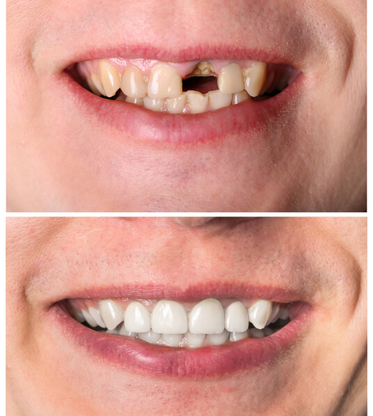A before and after of missing teeth.